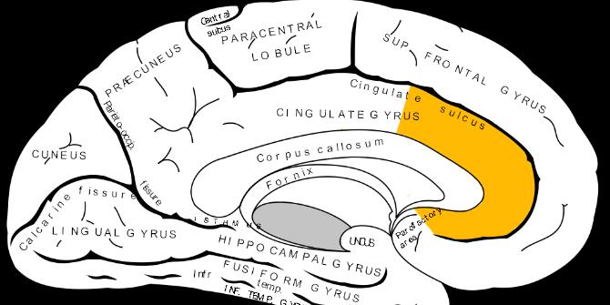 brain gender stereotype
