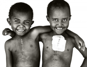 Weddy and Eunice at EMERGENCY's Salam Centre for Cardiac Surgery in Sudan ©Giles Duley